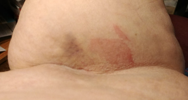 Bruise and rash from IV needle