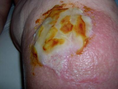 Cellulitis Ulcer
