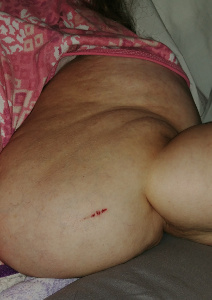 Cut in arm with Lipo-Lymphedema