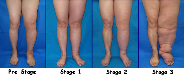 Stages of Lymphedema