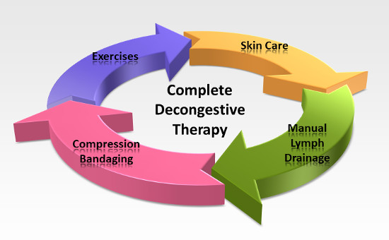 Complete Decongestive Therapy (CDT) for Lymphedema
