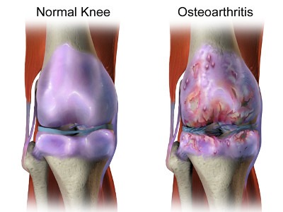 Regular and Osteoarthritis knees